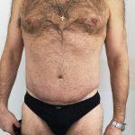 Κοιλιοπλαστική - Πριν και μετά 20 - 5