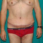 Κοιλιοπλαστική - Πριν και μετά 34 - 4