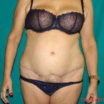 Κοιλιοπλαστική - Πριν και μετά 72 - 4
