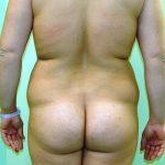 λιποαναρρόφηση-περιστατικό-2-γ