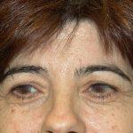 βλεφαροπλαστική περιστατικόβλεφαροπλαστική περιστατικό 1 α