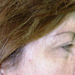 βλεφαροπλαστική περιστατικόβλεφαροπλαστική περιστατικό 20 β