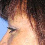 βλεφαροπλαστική περιστατικόβλεφαροπλαστική περιστατικό 20 ε
