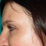 βλεφαροπλαστική περιστατικό 18 ζβλεφαροπλαστική περιστατικό 25 ε