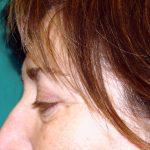 βλεφαροπλαστική περιστατικόβλεφαροπλαστική περιστατικό 4 ε