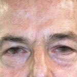 βλεφαροπλαστική περιστατικόβλεφαροπλαστική περιστατικό 6 α