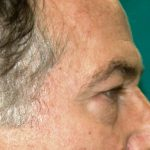 βλεφαροπλαστική περιστατικόβλεφαροπλαστική περιστατικό 6 β