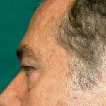βλεφαροπλαστική περιστατικόβλεφαροπλαστική περιστατικό 6 γ