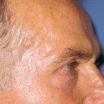 βλεφαροπλαστική περιστατικόβλεφαροπλαστική περιστατικό 6 ε