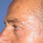 βλεφαροπλαστική περιστατικόβλεφαροπλαστική περιστατικό 6 ζ