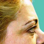βλεφαροπλαστική περιστατικόβλεφαροπλαστική περιστατικό 7 β