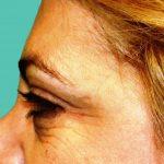 βλεφαροπλαστική περιστατικόβλεφαροπλαστική περιστατικό 7 γ