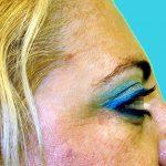 βλεφαροπλαστική περιστατικόβλεφαροπλαστική περιστατικό 7 ε