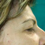 βλεφαροπλαστική περιστατικόβλεφαροπλαστική περιστατικό 8 β