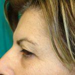 βλεφαροπλαστική περιστατικόβλεφαροπλαστική περιστατικό 8 γ