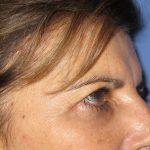 βλεφαροπλαστική περιστατικόβλεφαροπλαστική περιστατικό 8 ζ