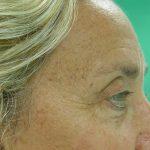 βλεφαροπλαστική περιστατικόβλεφαροπλαστική περιστατικό 9 β